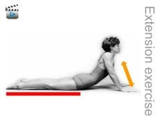McKenzie_extension-exercise